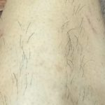 light-hair-removal-13week-later